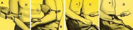 A) R. Bicipitale; B) R. Tricipitale; C) R. Stiloradiale; D) R. Stilocubitale